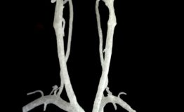 3D_Printed_Carotid_and_Vertebral_arteries_20151204